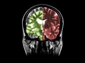 Alz1 300x221 - درمان بیماری های مغز توسط خوردن غذاهای سالم