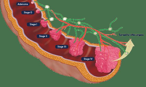سرطان روده بزرگ و مراحل پیشرفت آن