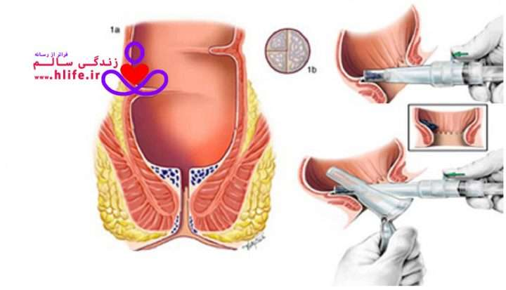 hemorrhoidsurgery 720x413 - بواسیر  خارجی چیست؟ علل، علائم و درمان بواسیر خارجی (هموروئید خارجی )