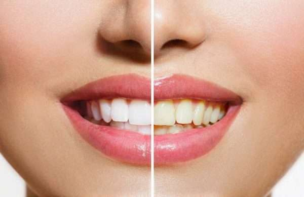 سفیدی دندان