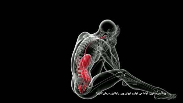 سردرد و ویروس اچ ای وی HIV