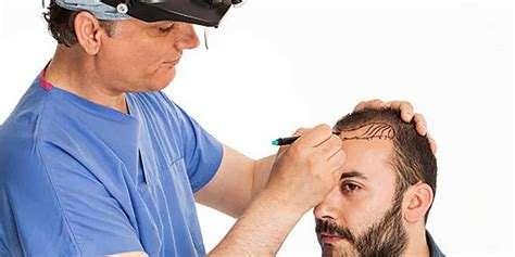 تصویر در روشهای کاشت مو