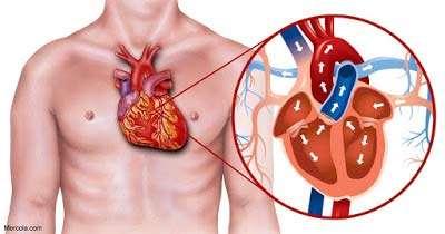 بیماری قلبی و نشانه کمردرد