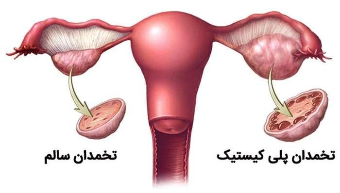 تصویر در تنبلی تخمدان  یا تخمدان پلی کیستیک : علل و درمان آن