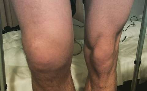 Darryl knee before the op - رباط صلیبی و آسیب های آن