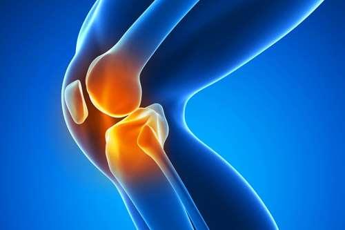 knee arthritis - آسیب رباط صلیبی چگونه درمان می شود؟