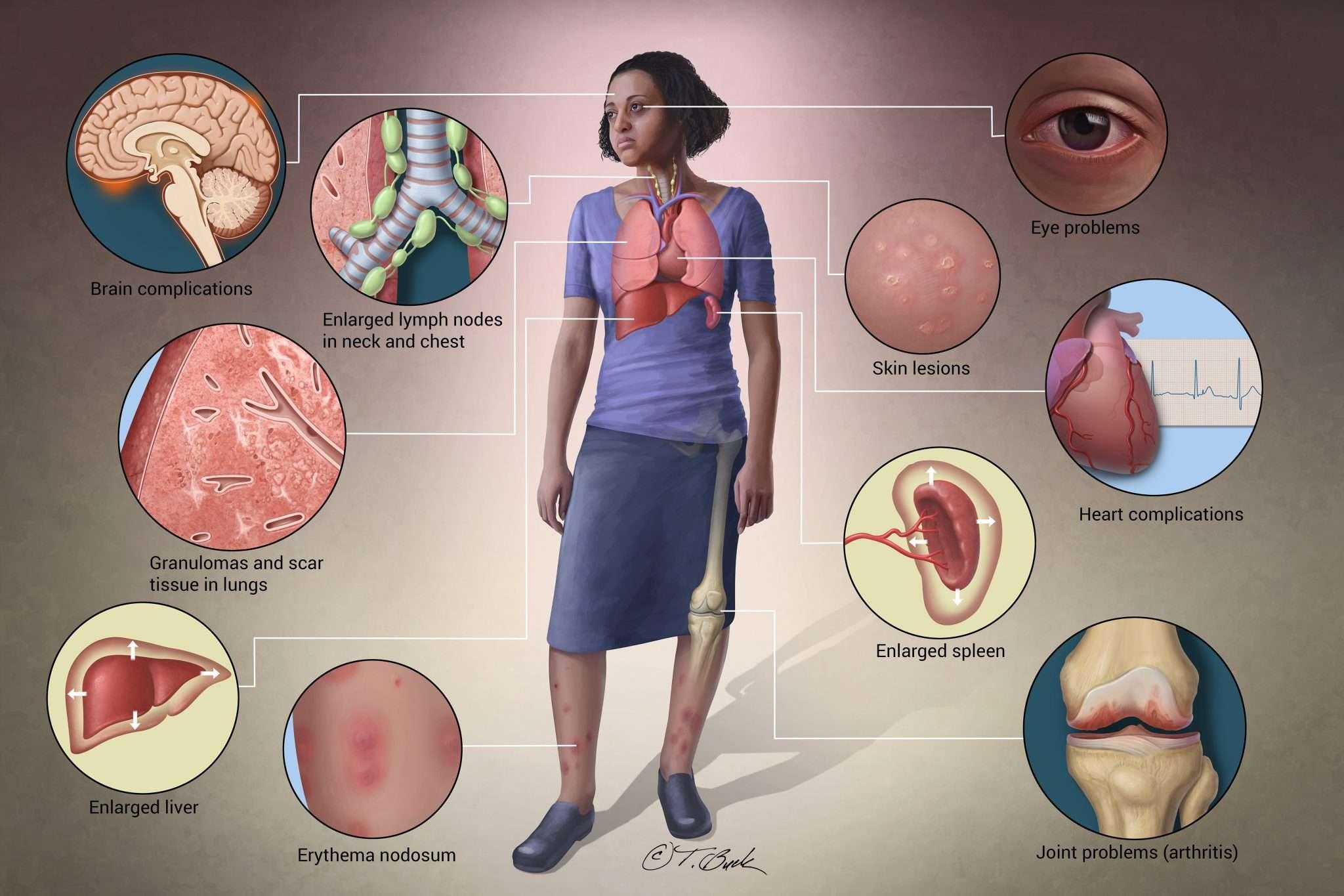 علایم و نشانههای سارکوئیدوز