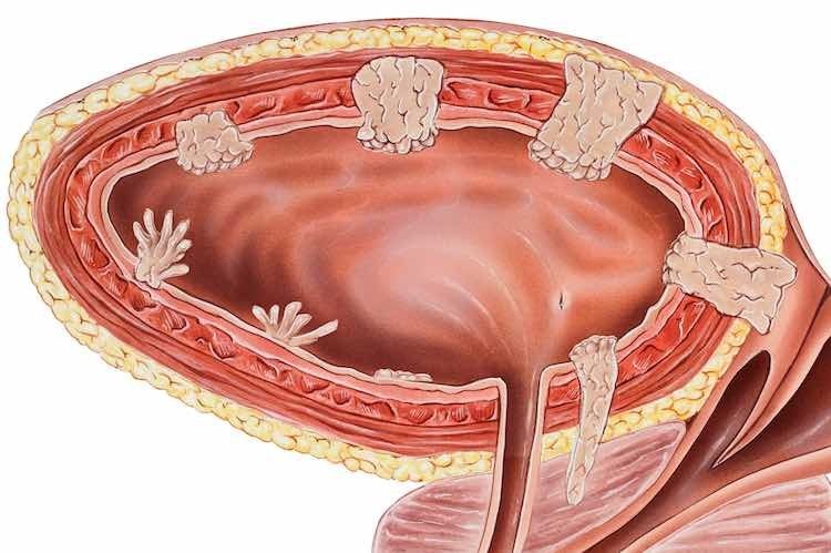 تصویر در سرطان مثانه : علائم، تشخیص و روش های درمان آن