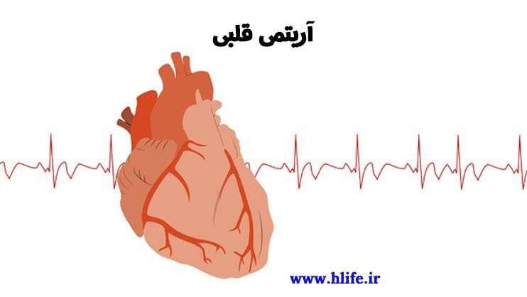 آریتمی قلبی PVC