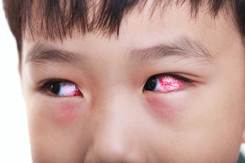 تصویر در سندرم کاوازاکی؛ تشخیص، درمان و زندگی روزمره