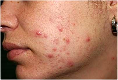 moderate acne - جوش بلوغ؛ 10 راهکار برای از بین بردن جوش جوانی