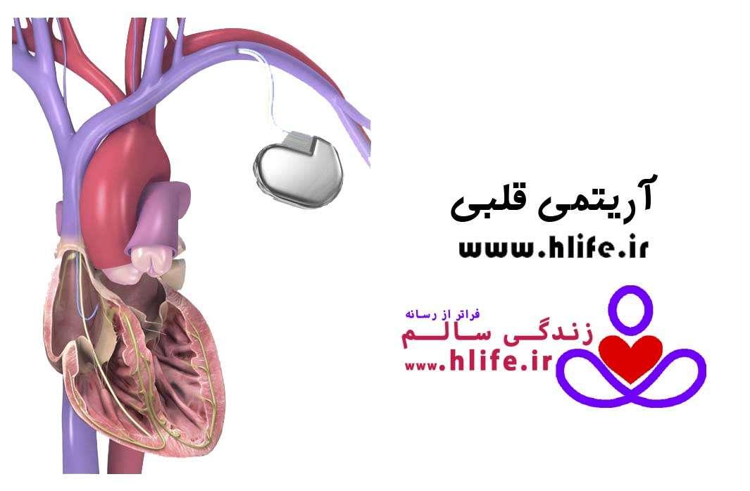 تصویر در آریتمی قلبی چیست ؟ علت، نشانه ها، و درمان آن
