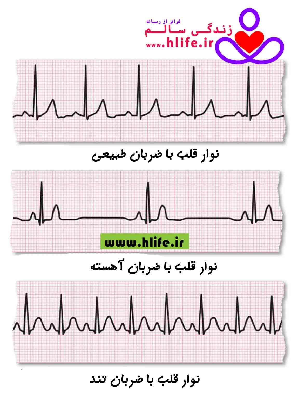 آریتمی، ضربان غیرطبیعی قلب