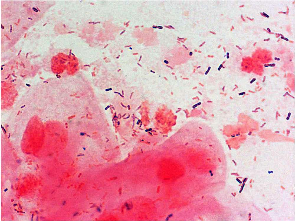 تصویر در واژینوز باکتریایی: بیماری باکتریایی واژن چیست ؟ + علائم و درمان آن
