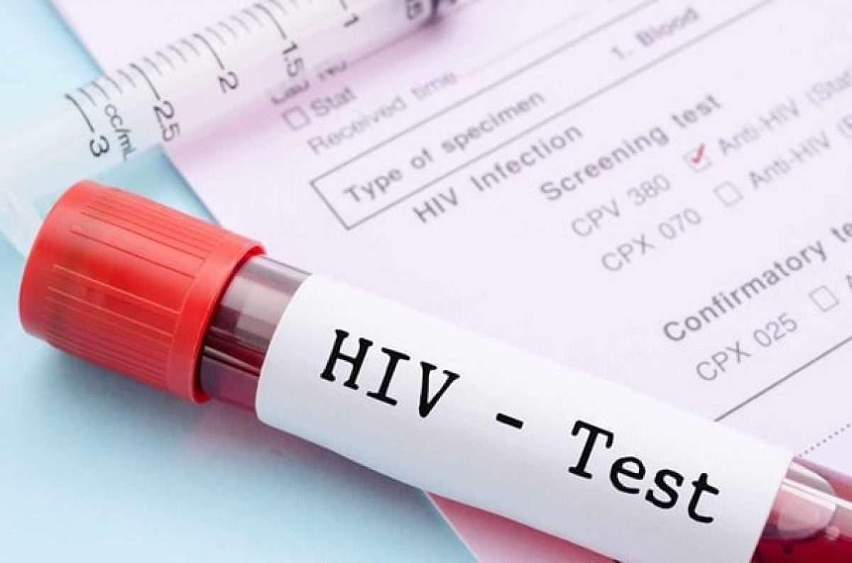 آزمایش ایدز ، آزمایش HIV