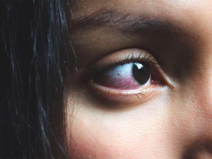 تصویر در مشکلات چشم